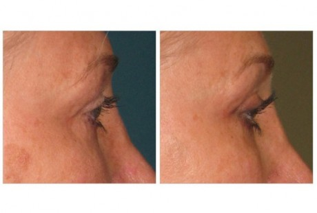 More Youthful eyes can be yours without surgery... thanks to ULTHERAPY !