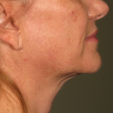 Youthful neck contour ... after ULTHERAPY
