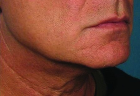 Smoother younger jawline after ULTHERAPY